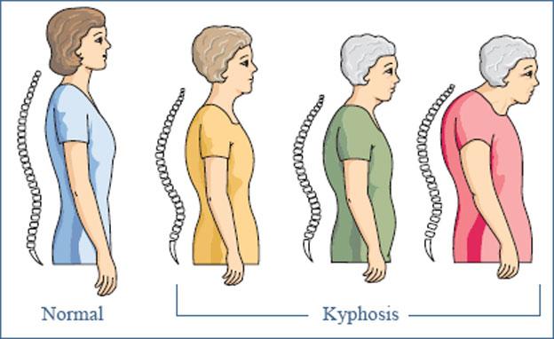 CalciumKnowing-Osteoporosis