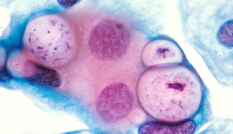 Pap_smear_showing_clamydia_in_the_vacuoles_500x_H&E