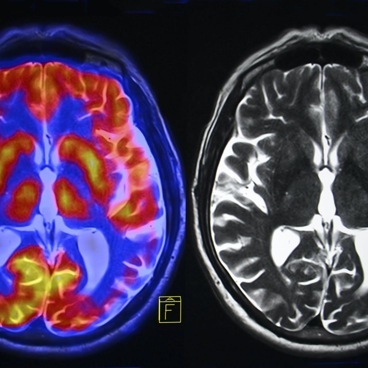 الموت دماغيا - مجلة نقطة العلمية